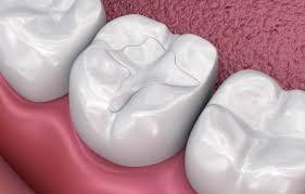Fylling i tann